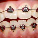 Krivi zobje so lahko zelo moteči za naše življenje
